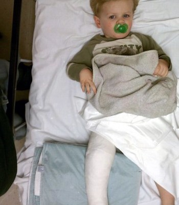 How My Toddler Broke His Leg and Why I won't sue McDonald's