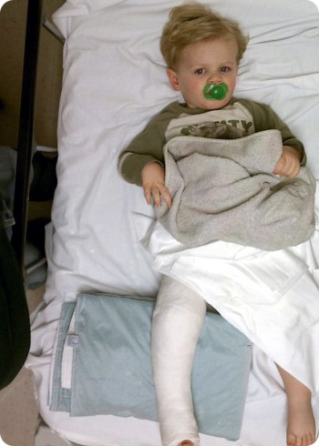 How My Toddler Broke His Leg and Why I won't sue McDonald ...