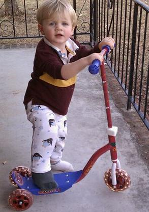Toddler on a Scooter with a Cast